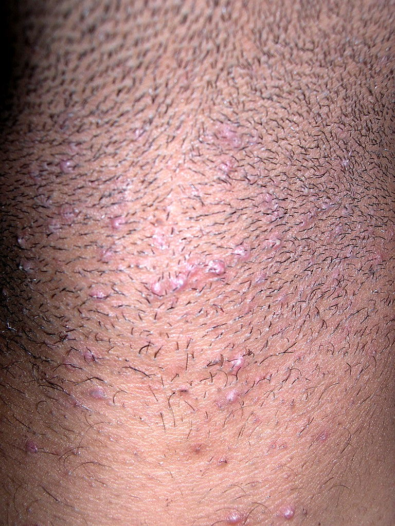 how to not get red bumps after shaving neck