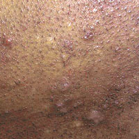 razor bumps on back of neck