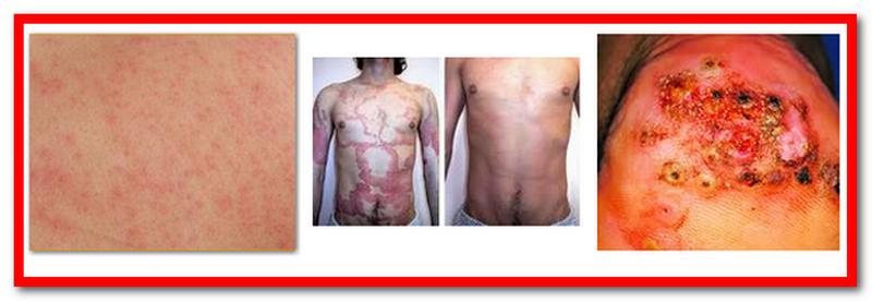 Human Skin Parasites